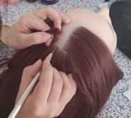 Cheveux implantés