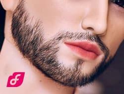 Barbe implantée 2